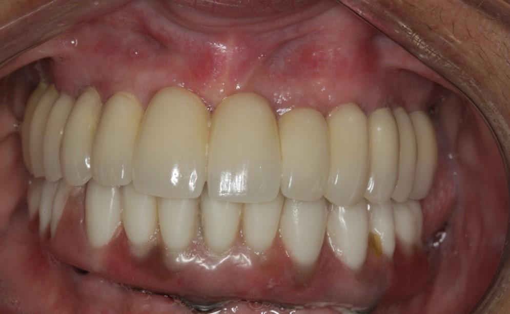 Reabilitação Implantosuportada