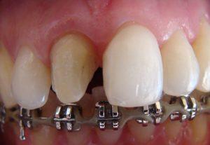 Reabilitação sobre Dentes Naturais